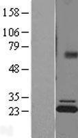 NBL1-07822 - ATP5F1 Lysate
