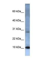NBP1-69248 - ATP5G2