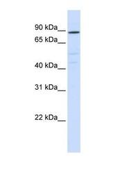 NBP1-59069 - ATP6V0A2