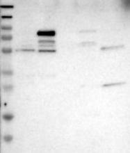 NBP1-89330 - ATP6V0A4