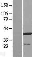 NBL1-07834 - ATP6V0D1 Lysate