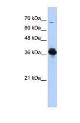 NBP1-54595 - ATP6V0D2