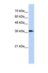 NBP1-54857 - ATP6V0D2