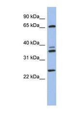 NBP1-55212 - ATP6V1A