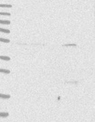 NBP1-88891 - ATP6V1C1