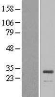 NBL1-07843 - ATP6V1E1 Lysate