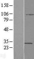 NBL1-07844 - ATP6V1E2 Lysate