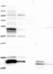 NBP1-88894 - ATP6V1G3
