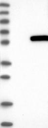 NBP1-85668 - ATP6V1H