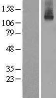 NBL1-07848 - ATP7b Lysate