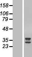 NBL1-07850 - ATPAF2 Lysate