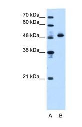 NBP1-54700 - ATP synthase subunit beta