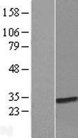 NBL1-07851 - ATPBD4 Lysate