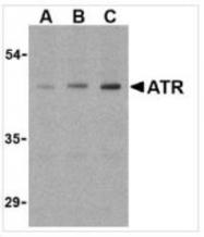 NBP1-77233 - Anthrax toxin receptor 1