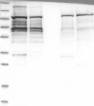 NBP1-90062 - Ataxin-2