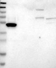 NBP1-90063 - Ataxin-2