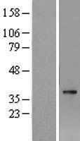 NBL1-09846 - AWAT1 Lysate