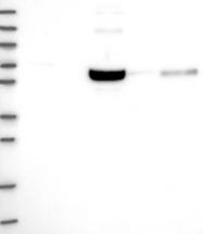 NBP1-90257 - Acetoacetyl-CoA synthetase