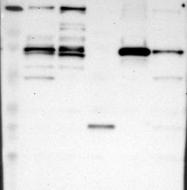 NBP1-90276 - ACSS2