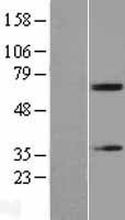 NBL1-07238 - Acetylcholinesterase Lysate