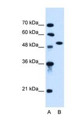 NBP1-62448 - Activin receptor type 1 (ACRV1)