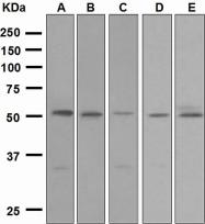 NBP1-95569 - Activin receptor type 1B (ACVR1B)