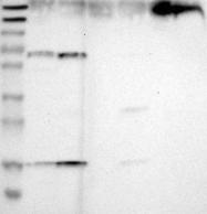 NBP1-90254 - ACVRL1 / ALK1