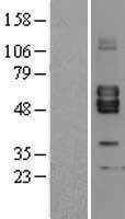 NBL1-07298 - Activin A Receptor Type II-like 1 Lysate