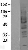 NBL1-07351 - Adenosine A2b Receptor Lysate