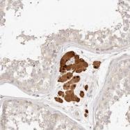NBP1-90249 - Adenosine receptor A3