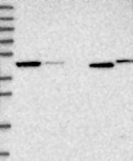 NBP1-90197 - Adenosine kinase (AK)