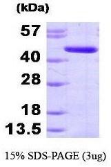 NBP1-44382 - Adenosine kinase (AK)