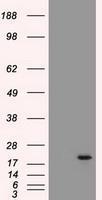 NBP1-47655 - Adenylate kinase 1 (AK1)