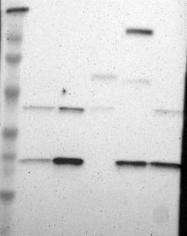 NBP1-87401 - Adenylate kinase 1 (AK1)