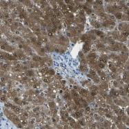 NBP1-87462 - Adenylosuccinate lyase (ASL)