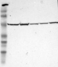 NBP1-87406 - Adenylosuccinate lyase (ASL)