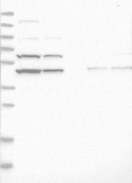 NBP1-90360 - Adenylosuccinate synthetase isozyme 2