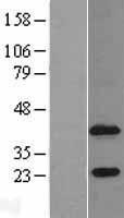 NBL1-07385 - Agpat4 Lysate