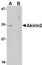 NBP1-76347 - AKIRIN2 / C6orf166