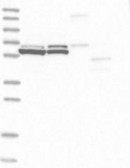 NBP1-91656 - ALAS1