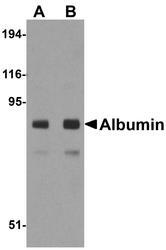 NBP1-77027 - Albumin