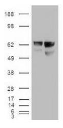 NBP1-48258 - Albumin