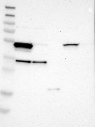 NBP1-90193 - ALDH3A2 / ALDH10
