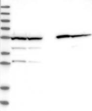 NBP1-90192 - ALDH5