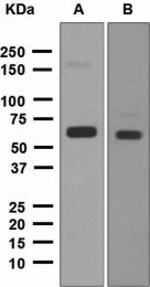 NBP1-95433 - ALDH2