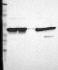 NBP1-90954 - Aldolase C / ALDOC
