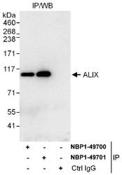 NBP1-49700 - ALIX / PDCD6IP