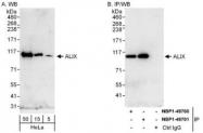 NBP1-49701 - ALIX / PDCD6IP