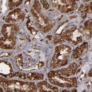 NBP1-90295 - Alpha-1-antichymotrypsin (ACT)