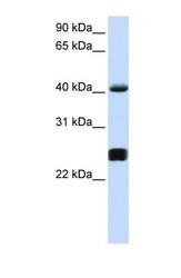 NBP1-58981 - Alpha-1-antichymotrypsin (ACT)
